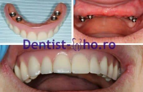 Proteza pe implante - caz 1