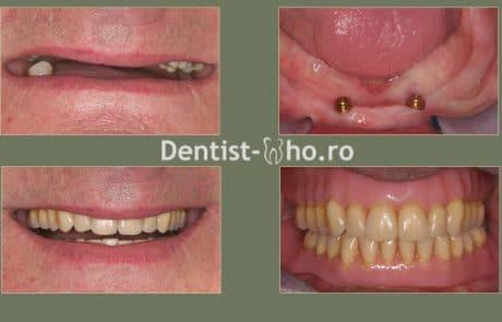 Proteza pe implante - caz 2