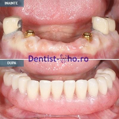 Proteza pe implante - caz 3