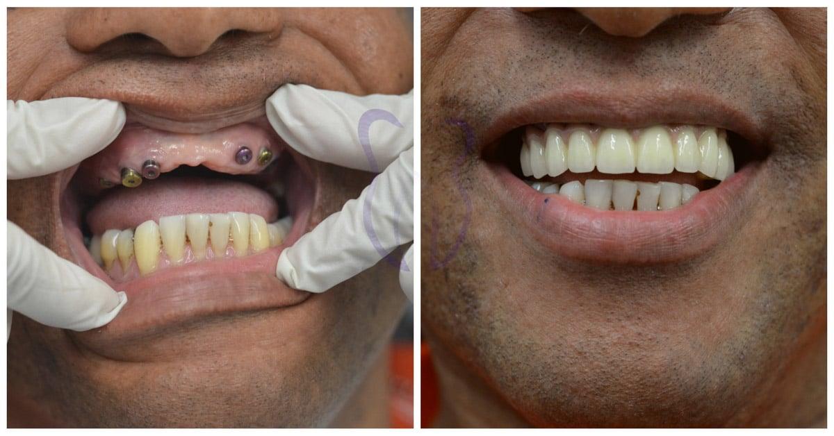 Proteza pe implante - caz 5