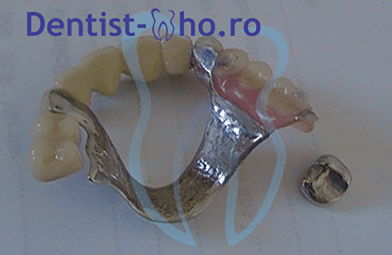 proteza scheletata maxilar